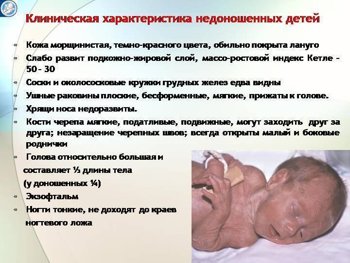 Недоношенный ребёнок — википедия