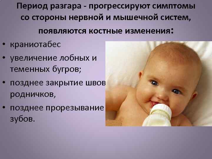 Диагностика и профилактика рахита недоношенных детей