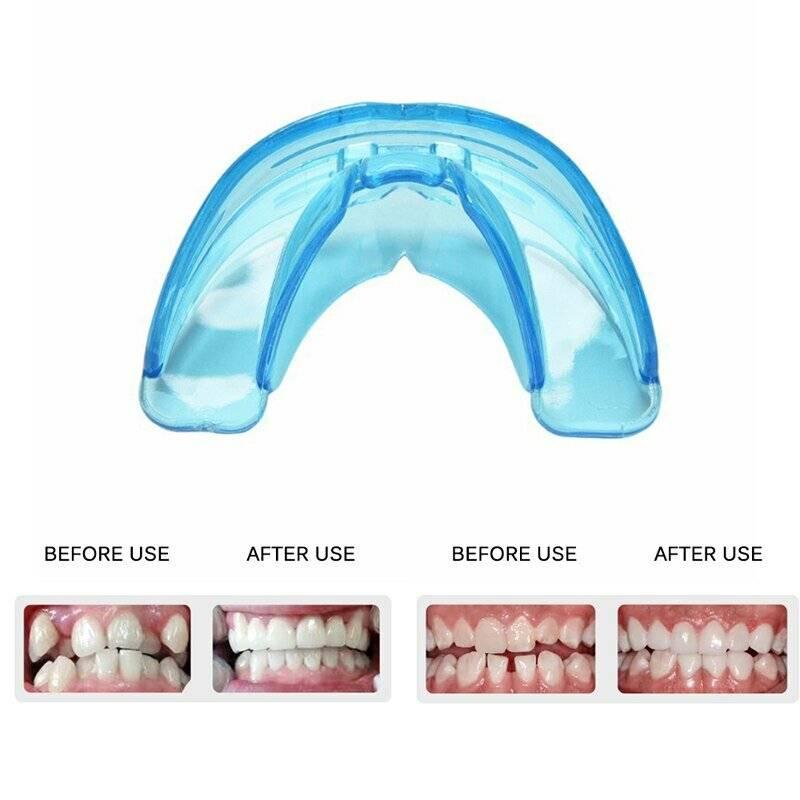 Пластинка для зубов детям: цены на ортодонтические пластинки   новадент